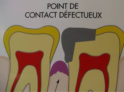 Point de contact insuffisant: bourrage alimentaire. (abcdentaire.free.fr)