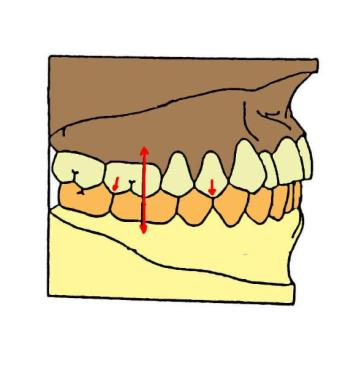 Position d'intercuspidie maximale (osteopathe-lignon.com).