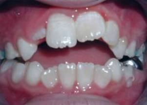 Béance incisive(centreorthodontielaval.fr)