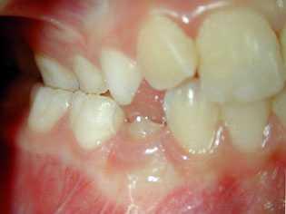Occlusion croisée aux molaires(dpnaurais.free.fr)