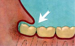 Infection du sac péricoronaire d'une dent de sagesse du bas (homeopathie-dentaire.net).