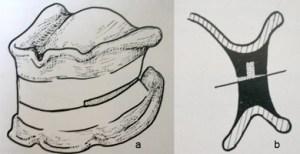 Pour la prothèse totale haut et bas les bourrelets d'occlusion sont colés entre eux dans une position de réference (lecourrierdudentiste)