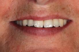 Montage naturel des dents(chirurgiens-dentistes-en-france.fr)