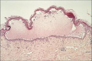 La caractéristique de la bulle pemphigoïde est d'être intra-dermique. (umvf.univ-nantes.fr)