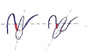 En rouge: la hauteur de gencive attachée.
