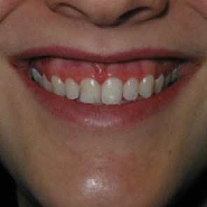 Sourire gingival(wellnesscliniek.com)