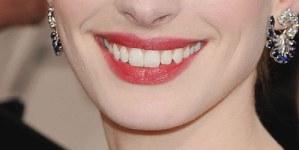 Les lèvres découvrent jusqu'au molaires(aufemin.com).