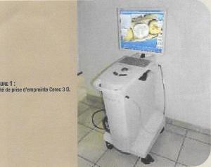 Machine CEREC 3 D pour la prise d'empreintes.(Drs. Israël)