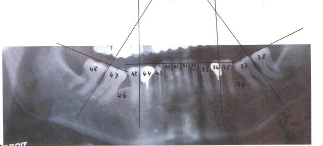 Voyez le résultat cahotique d'extractions précoces de molaire chez un enfant de 10 ans.