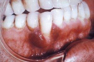 Sarcome de Kaposi des gencives (le courrier du dentiste).