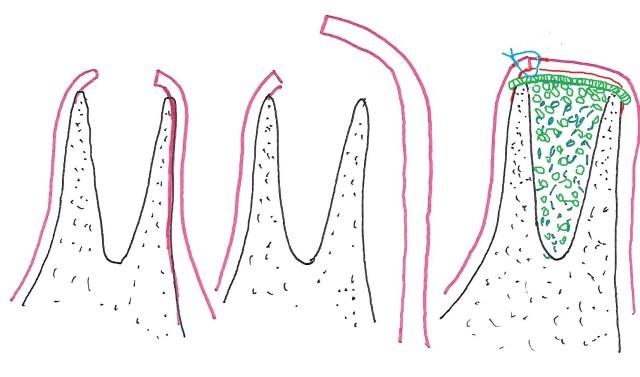 Le bord osseux ne sont pas raccourcis, la gencive est décollée largement en vestibulaire, l'alvèole est comblé avec de l'os synthétique puis recouvert avec une membrane résorbale et la genvive suturée fermement.