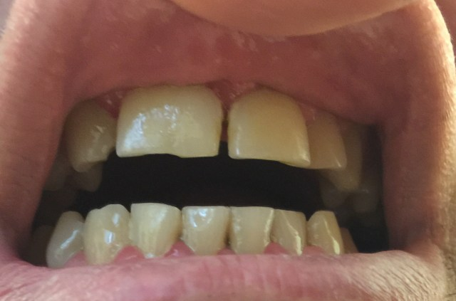 Incisives centrale 11 et latérale 12 soudée en une seule dent.