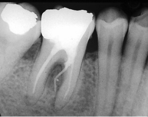 Fausse route et perforation sur molaire inférieure. (librairiedentaire.com)