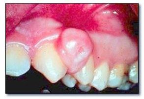 Granulome périphérique à cellules géantes (dentalcare.fr).