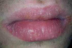 Chéilite médicamenteuse (lecourrierdudentiste.com).