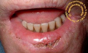 Cheilite actinique tabagique (dermatologie.free.fr).