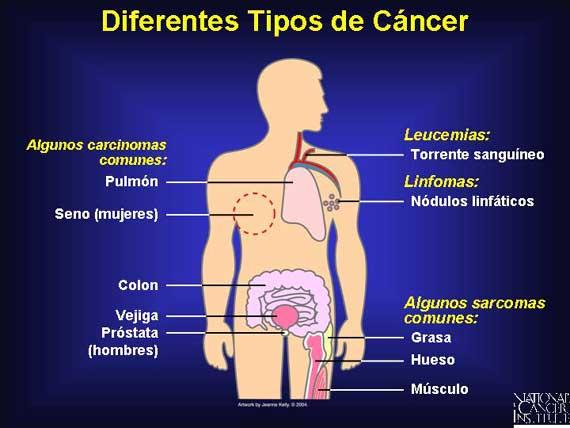 ¿De que se Alimentan las Células Cancerígenas? (2/3)