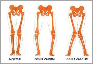 Genu-Varo