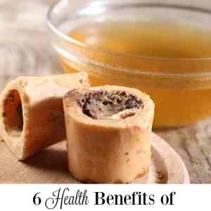 6 Health Benefits of Drinking Bone Broth
