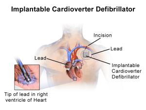 Defective Boston Scientific ICD Recall