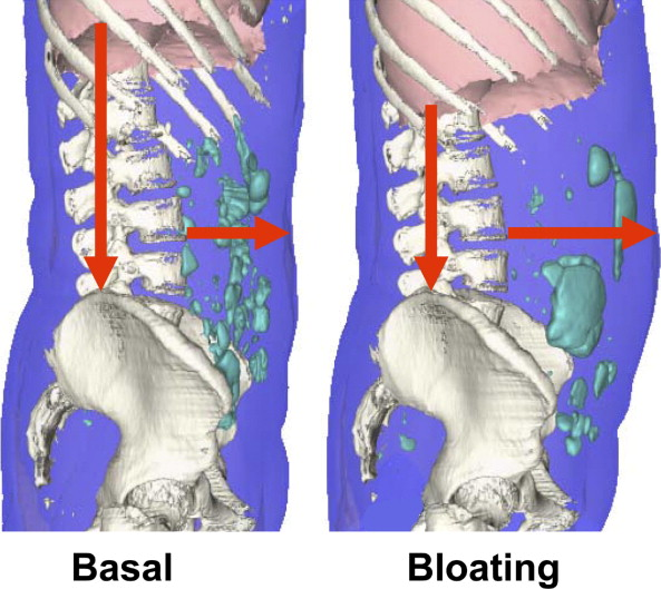 Distensión abdomina