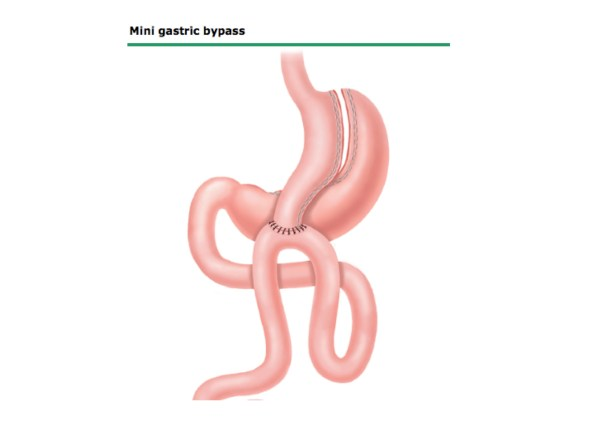 Mini gastric by pass