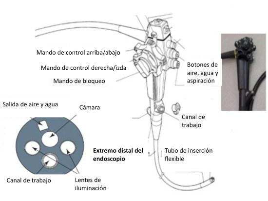 dieta para examen de endoscopia digestiva