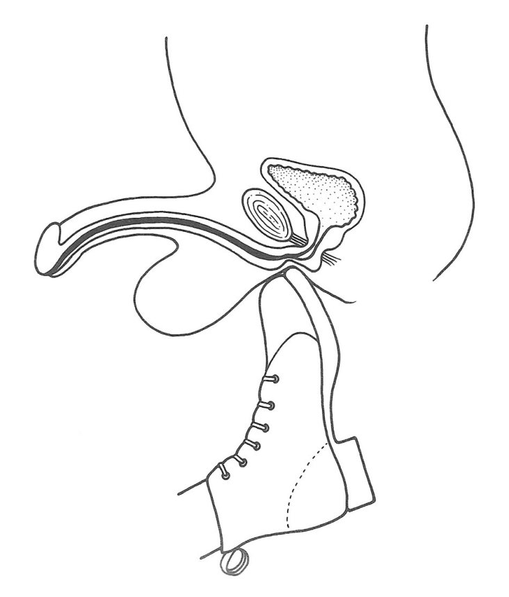 Estrechez Uretral por Traumatismo Perineal