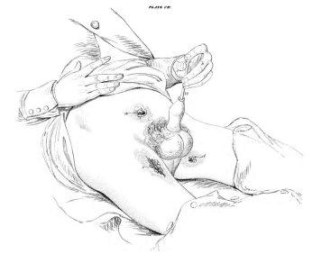 Autodilatación Uretral Lizars_1851