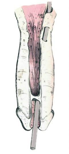 Falsa Vía Uretral (Marlise, 1859)