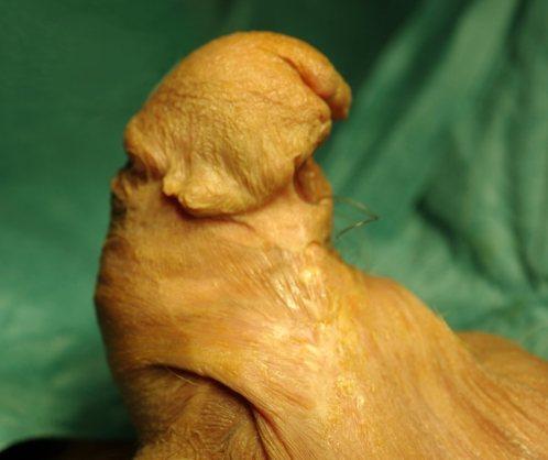 Hipospadias Multioperado_Cicatrices