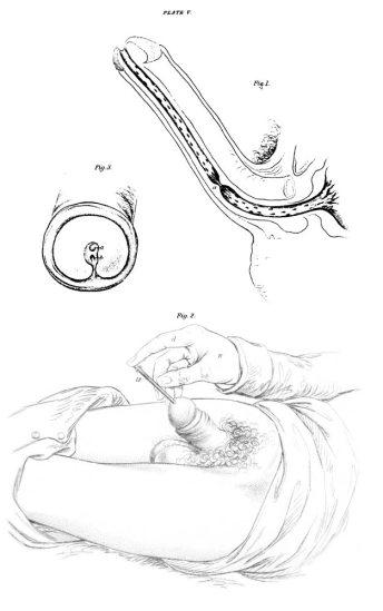 Autodilatación Uretral (Lizars, 1851)