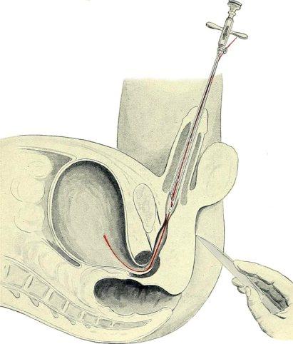 Uretrotomía perineal externa (Horwitz, 1908)