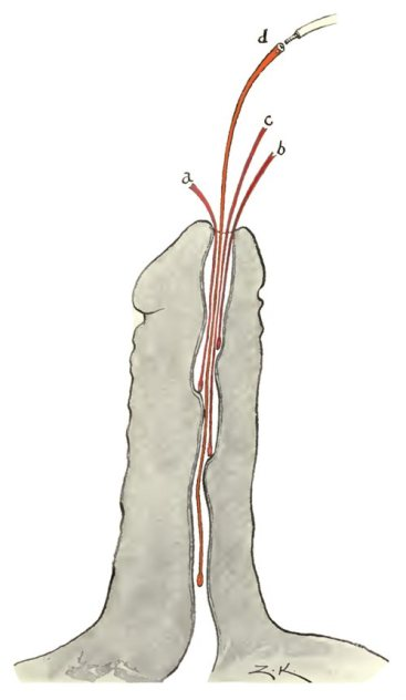 Dilatación uretral con sondas filiformes (Koll, 1918)