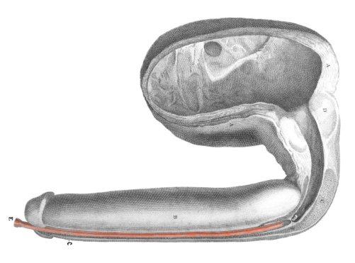 Un cálculo o piedra se enclava en la uretra bulbar por una estenosis infranqueable (Hunter, 1786).