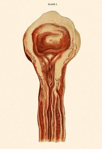 Estenosis uretral de larga evolución (Lydston, 1893)