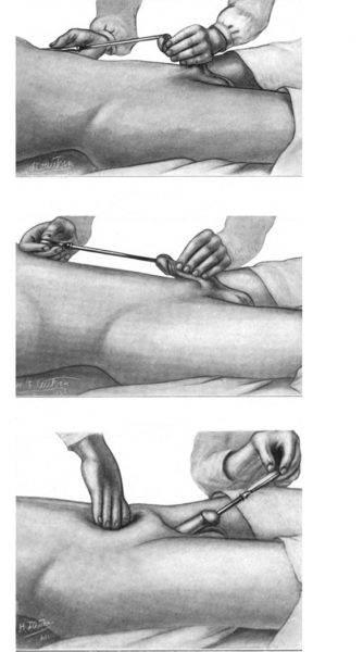 Escala Terapéutica en la Estenosis Uretral: Dilatación