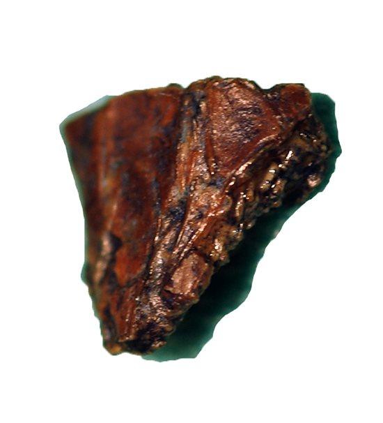 Un cálculo o piedra se enclava en la uretra de un paciente con estenosis.