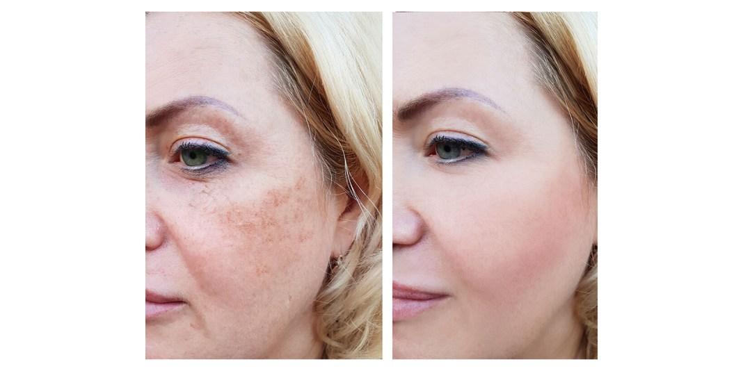 NuGlow RGB Light Therapy Skincare copy