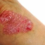Dermatitis atópica, mal que lucha con sus síntomas y contra el tiempo
