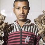 """""""Hombre árbol"""" de Bangladesh abandona entre críticas toda esperanza de cura"""
