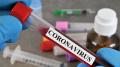 كورونا: تونس تسجّل 7 إصابات جديدة وافدة