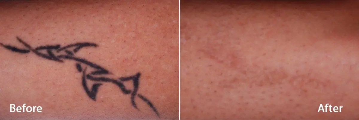 PicoWay Tattoo Removal Before and After Photo