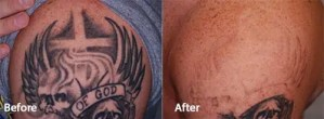 PicoWay Tattoo Removal