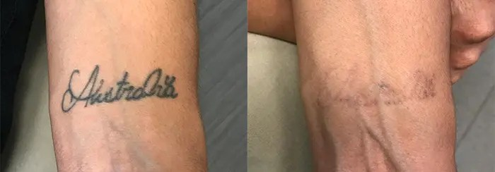Laser Tattoo Removal on Wrist