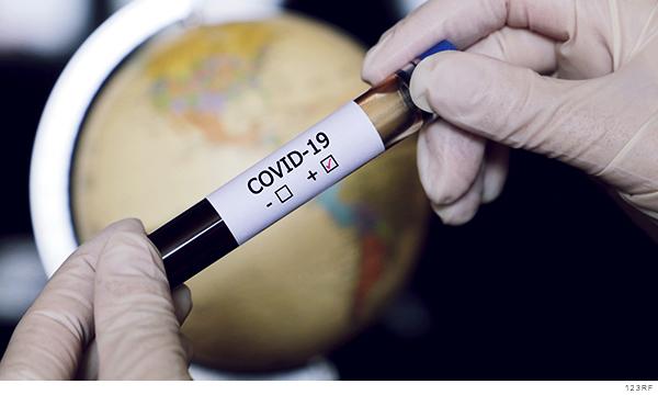 muestra de sangre positiva a Covid-19