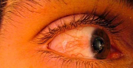 occhio rosso secco