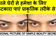 How To Get Rid Of Dark Circles In 3 Days – काले घेरे-  by Simple Beauty Secrets