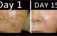 How To Get Rid Of Dark Spots – Black Spots – Acne Scars By Simple Beauty Secrets