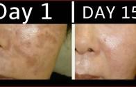 How To Get Rid Of Dark Spots – Black Spots – Acne Scars By Simple Beauty Secrets